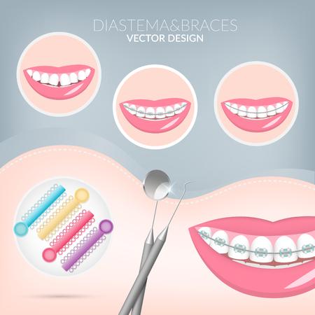 Dentist, orthodontist. Teeth healthy and dental braces. Dentistry instruments metal braces, Dental Ligature Ties, aligners. Vector illustration