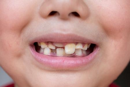 little child and broken teeth