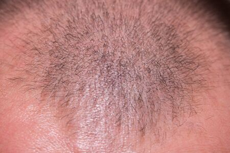 Male head with a small amount of hair. Balding head Stock Photo