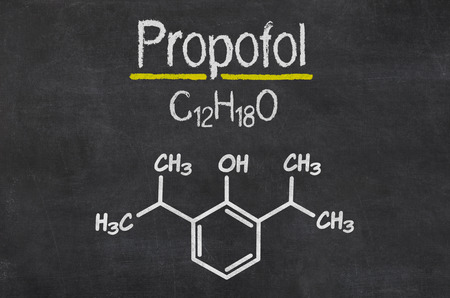anaesthesia: Blackboard with the chemical formula of Propofol