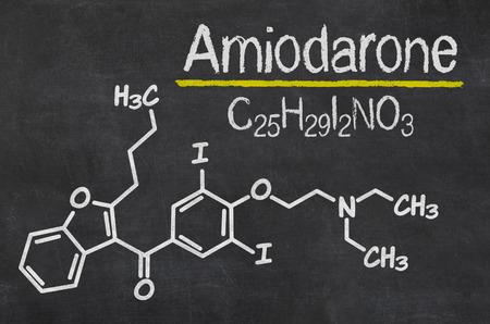 fibrillation: Blackboard with the chemical formula of Amiodarone Stock Photo