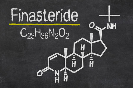 baldness: Blackboard with the chemical formula of Finasteride Stock Photo