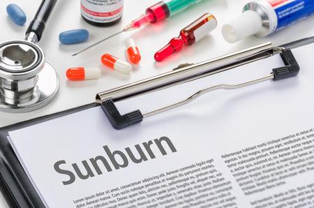 sunburn: The diagnosis Sunburn written on a clipboard