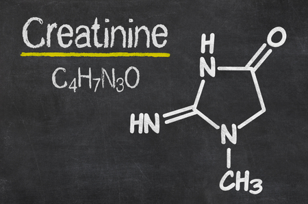 urine: Blackboard with the chemical formula of Creatinine Stock Photo