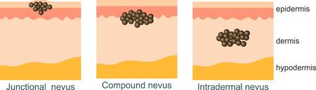 Mole on the surface of the skin, moles in the skin