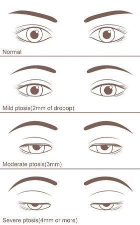眼瞼のプトシスは様々な程度に