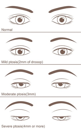 Eyelid ptosis to varying degrees Illustration
