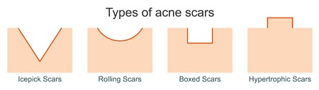 Types of acne scars Иллюстрация