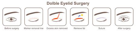 Chirurgie des paupières Doluble