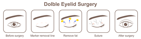 Double eyelid surgery Ilustração