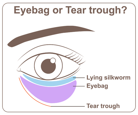 Eyebag or tear trough