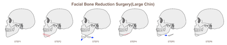 Facial Bone Reduction Surgery Large Chin