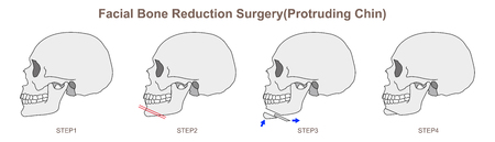 Facial Bone Reduction Surgery Protruding Chin