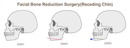 Facial Bone Reduction Surgery Receding Chin 일러스트