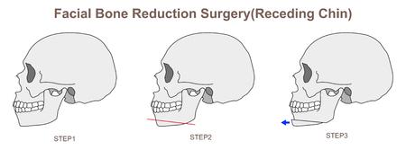 Facial Bone Reduction Surgery Receding Chin Illustration