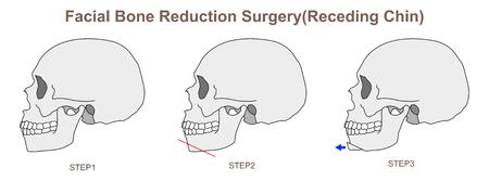Facial Bone Reduction Surgery Receding Chin) Illustration