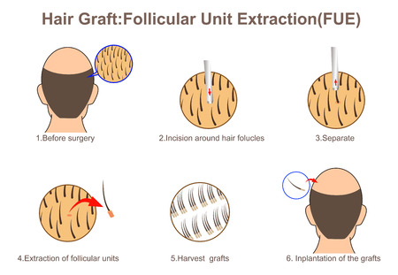 Hair graft:Follicular Unit Extraction