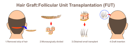 Hair graft:Follicular Unit Transplantation Ilustrace