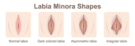 Labia minora shapes