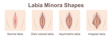 Labia minora shapes