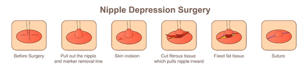 Nipple Depression surgery Illusztráció