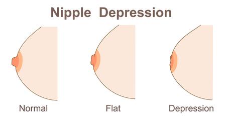 Nippel Depression Vektorgrafik