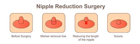 Chirurgia di riduzione del capezzolo-lunghezza Vettoriali