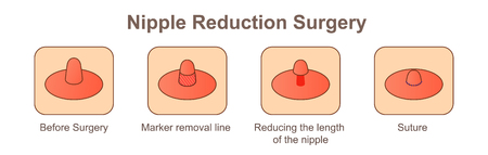 Nipple Reduction Surgery-length