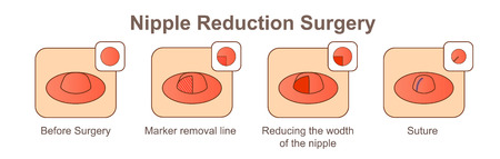 Nippelreduktion Chirurgie-Wodth
