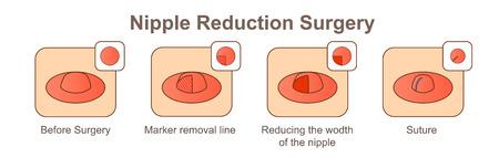 Nipple Reduction Surgery-wodth