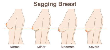 sagging breast