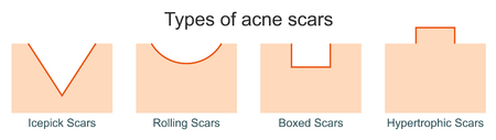 Types of acne scars Stock Illustratie