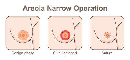 Areola narrow operation Stock Illustratie