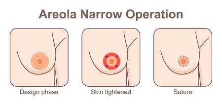 Areola narrow operation Illustration