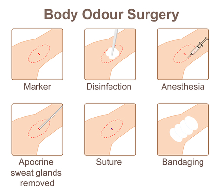 Body odor surgery Banque d'images - 104933914