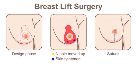 Cirugía de levantamiento de senos Ilustración de vector