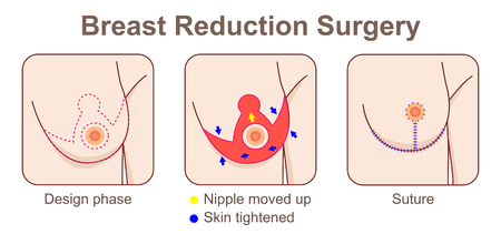 Breast Reduction Incisions surgery Stock Illustratie