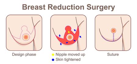 Chirurgie van de incisies van de borstverkleining