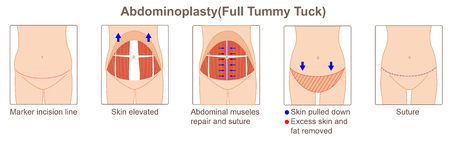 Abdominoplasty (full tummy tuck)