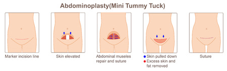 Abdominoplasty mini tummy tuck