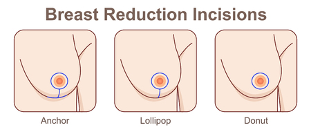 Breast Reduction Incisions