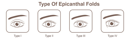 Type of epicanthal folds 일러스트