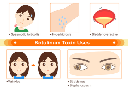 Botulinum Toxin Uses