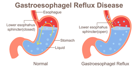 Gastroesophagel Reflux Disease Illustration
