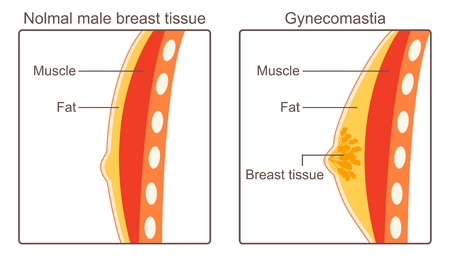 Enlargement of a man's breasts, usually due to hormone imbalance or hormone therapy.