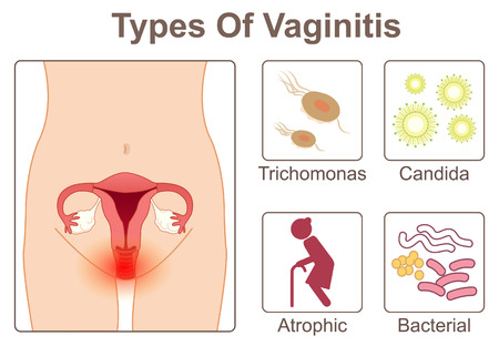Types of vaginitis 일러스트
