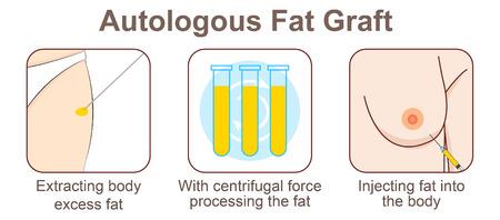 Transfert de graisse autologue Vecteurs