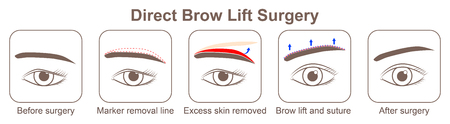 Direct Brow Lift Surgery