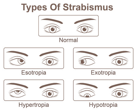 Types of Strabismus, abnormal alignment of the eyes Illustration