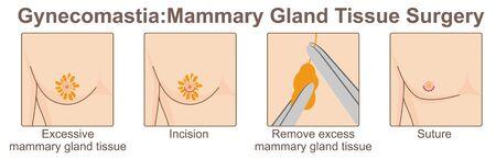 Gynecomastia, Mammary Gland Tissue Surgery
